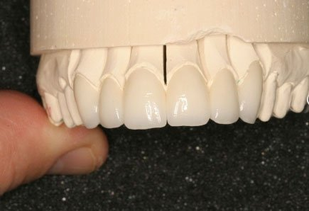porcelein-veneers-before-installation