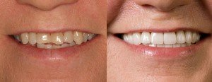 Di Vinci Venners smile closeup