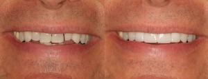 pat's quick smile makeover
