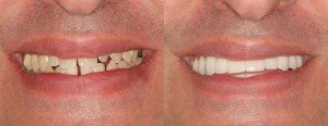 Davinci Veneers for Elvis's Smile