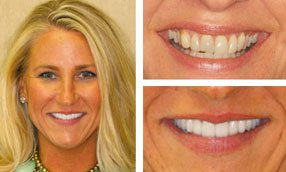 before-after-teeth-photos-charlotte-nc-dentist