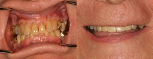 Dr-z-smile-before-and-after
