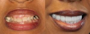 annette's new smile