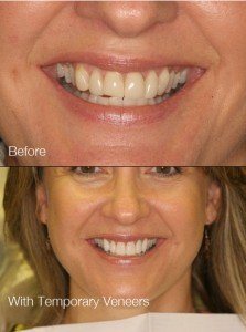 before treatment and with temporary veneers