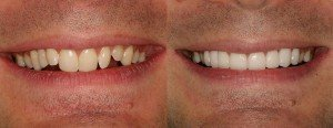 Daves new porcelain crwons and veneers