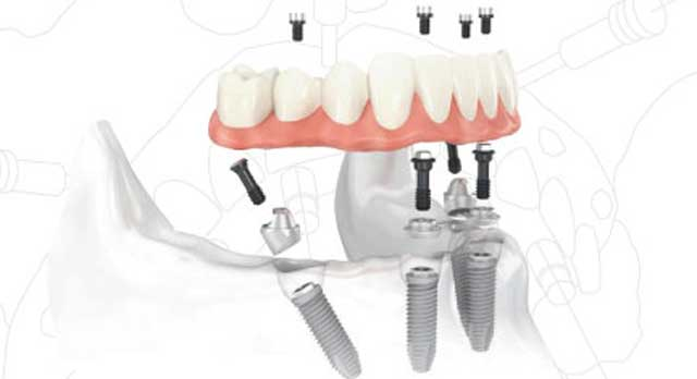 all on 4 dental implants adult dentistry ballantyne charlotte nc