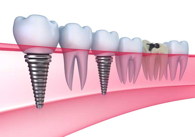 dental implants adult dentistry ballantyne charlotte nc