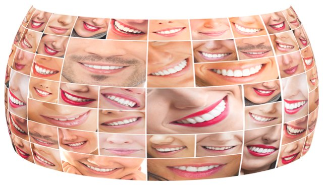 cosmetic smile dentistry gallery charlotte nc