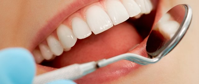 dental exam cleaning check up charlotte nc adult dentistry ballantyne