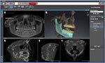 _Sicat-Digital-Implant-Guides