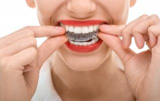 invisalign clear braces dentist charlotte nc ballantyne 28277