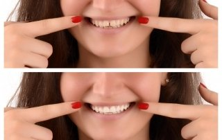 cosmetic dentistry charlotte nc implants invisalign veneers zoom! whitening dentist 28277