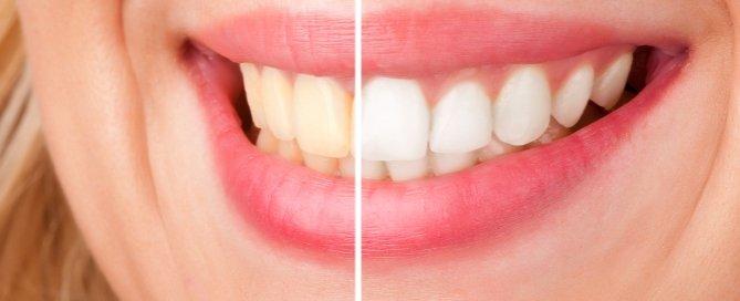 adult dentistry of ballantyne ZOOM! whitening teeth smile charlotte nc 28277