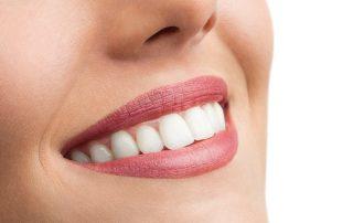 Adult-Dentistry-of-Ballantyne-same-day-crowns-cerec-charlotte-nc.jpg