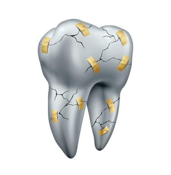 Adult-Dentistry-of-Ballantyne-cracked-tooth-damaged-dentition-Charlotte-NC.jpg