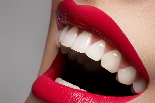 adult-dentistry-of-ballantyne-Zoom-whitening-for-holiday-smiles-charlotte-nc