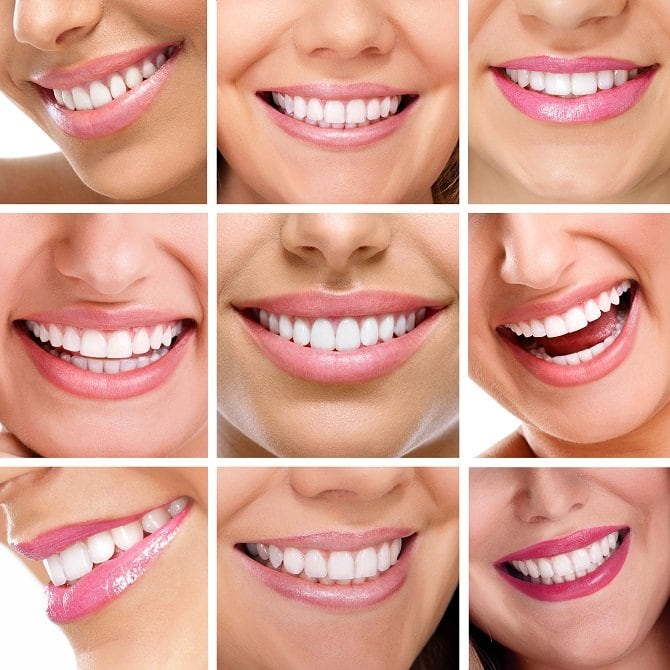 Adult-Dentistry-of-Ballantyne-Charlotte-NC-straigh-smile-invisalign-adult-braces