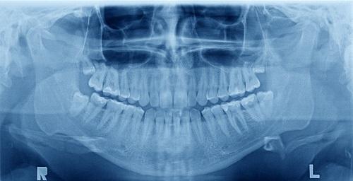 Adult-Dentistry-Of-Ballantyne-2018-dental-benefits