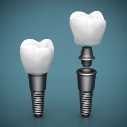 single dental implant charlotte nc