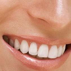 dental exam digital photography