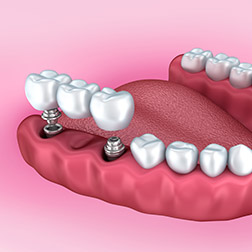 dental implant bridge charlotte nc