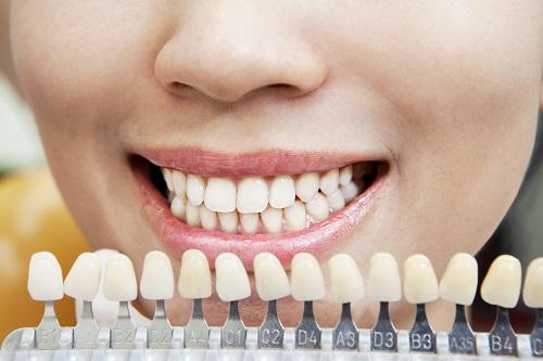 teeth-whitening-Charlotte-dentist-Adulty-Dentistry-Of-Ballantyne-NC