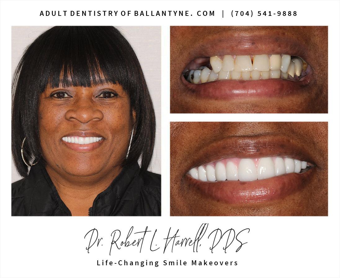 All-on-4 dental implants case study