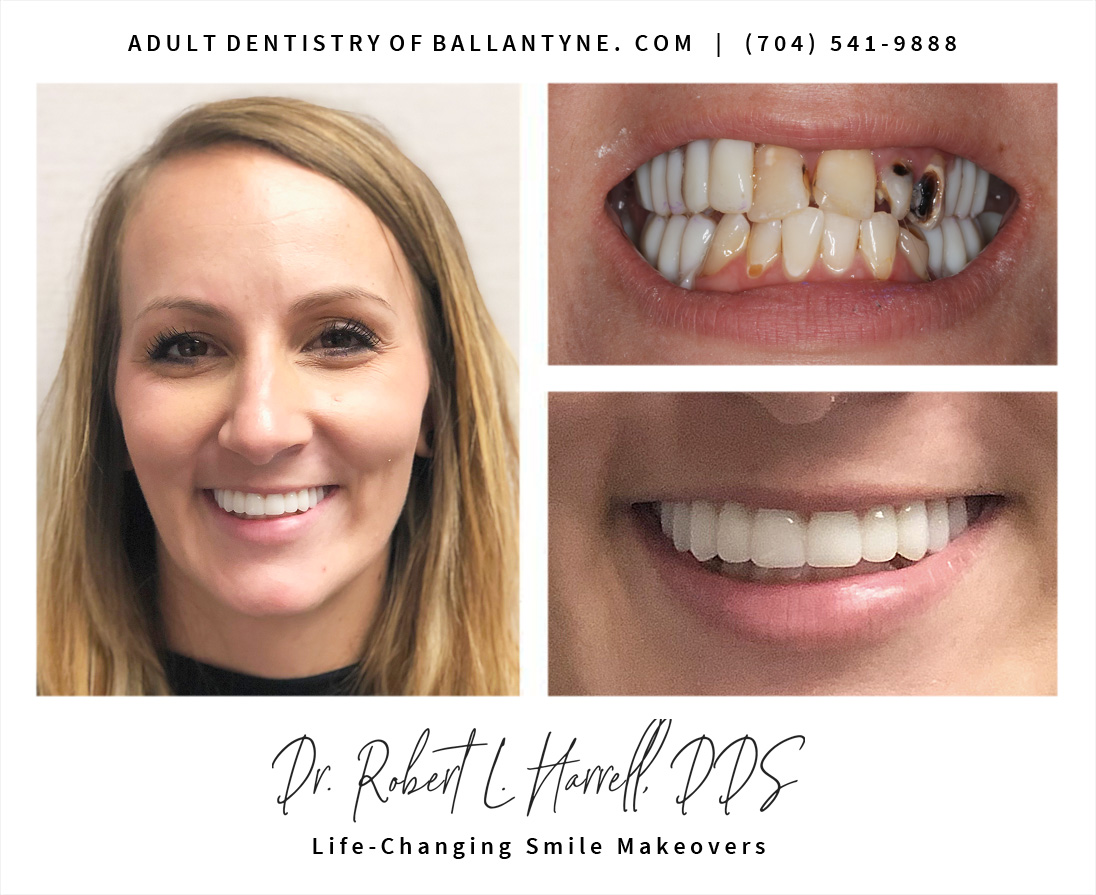 smile restoration - Charlotte Cosmetic dentist