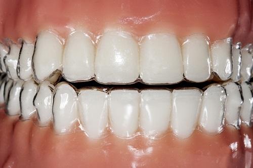 Adult-Dentistry-Of-Ballantyne-Invisalign-provider-Charlotte-NC